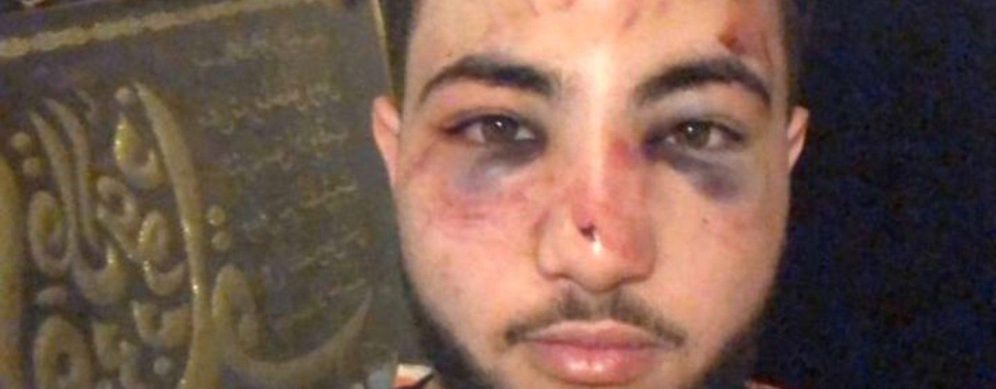 Le policier qui avait tabassé un jeune à Koenigshoffen condamné et incarcéré